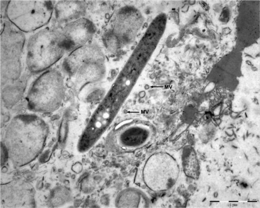 Transmission electron micrograph of a Leptotrichia buccalis cell with derived membrane vesicles (MVs) that provide an alternative mode of gene transfer. Bar=1 µm. Courtesy of Emenike R.K. Eribe.
