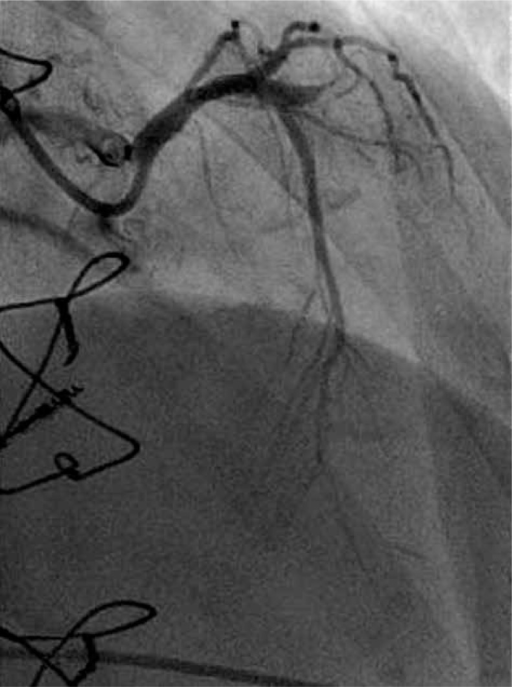 Occluded proximal segment of the left anterior descending coronary artery in 2013