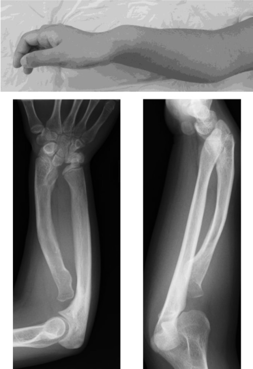 Madelung deformity in a female patient with SHOX deficiency. Upperpanel: appearance of the forearm. Prominence of the distal ulna is shown. Lower panel:radiographic findings. Shortening and bowing of the radius and dorsal subluxation ofthe ulnar head are shown.