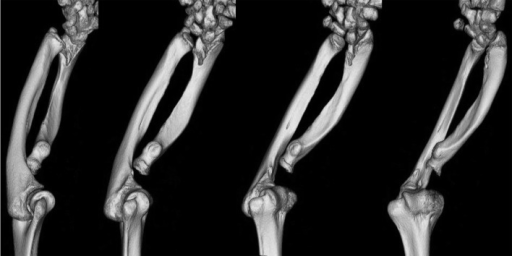 Forearm three-dimensional computed tomography of a female patient withSHOX deficiency. Significant findings include shortening of theradius, pyramidal configuration of the carpal bones and dorsal subluxation of the ulnain addition to severely disturbed structural organization of the elbow joint.