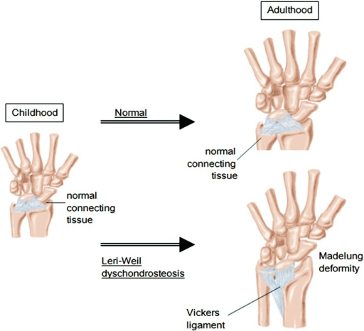 Schematic representation of the Vickers ligament that tethers the lunate to thedistal portion of the radius. This ligament seems to consist of hypertrophiedconnective tissues that form under the mechanical force that arises from asymmetricalgrowth of the radius and ulna.