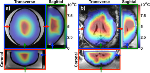 Treatment envelopes based on 2D MRTI. Three orthogonal views of the treatment envelopes based only on the focal spot heating for the phantom (a) and lamb (b) studies. Near-field temperatures are not considered for this type of envelope. Temperature rises of at least 10°C can be seen in large parts of the intracranial volume in both cases. This is the type of envelope that can be derived from 2D MRTI. In both (a) and (b), the temperature maps are overlayed on magnitude images. In (a) and (b), the three views are color coded, with the colored frame and arrows indicating each view's position in the other two views.