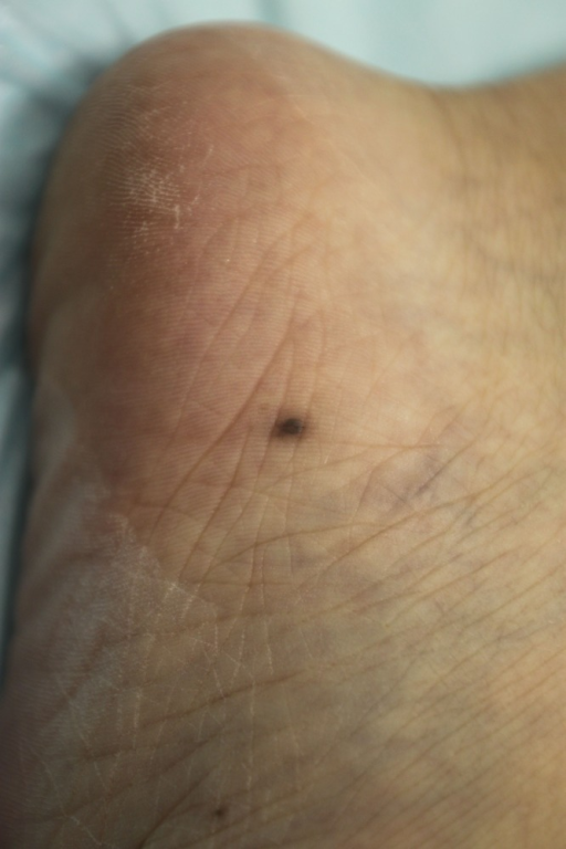 A black macule with a symmetrical border approximately 3 mm in diameter, suggesting the clinical diagnosis of melanocytic nevus.
