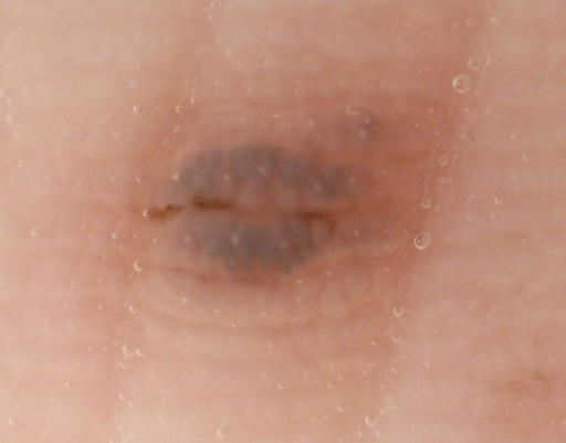Monotonous blue-gray pigmentation on the ridges of the skin markings and brown linear pigmentation on the furrows. (Copyright: ©2014 Sakai et al.)