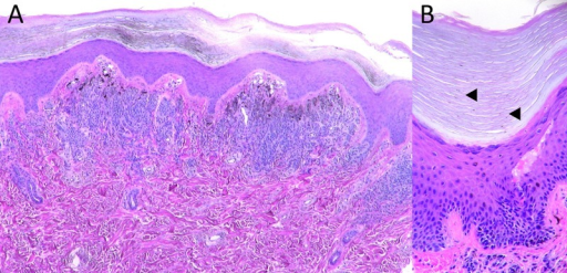 (A) Histopathological examination of the biopsy specimen showed well-defined nests of melanocytes with no nuclear atypia or mitotic figures. The nests were located at the dermoepidermal junction or in the dermis. Nests in the dermis were located mainly under the crista profunda intermedia, and nests ascending into the epidermis were not seen. (B) Melanin columns in the stratum corneum were observed faintly but exclusively above the crista profunda limitans (◂).(Copyright: ©2014 Sakai et al.)