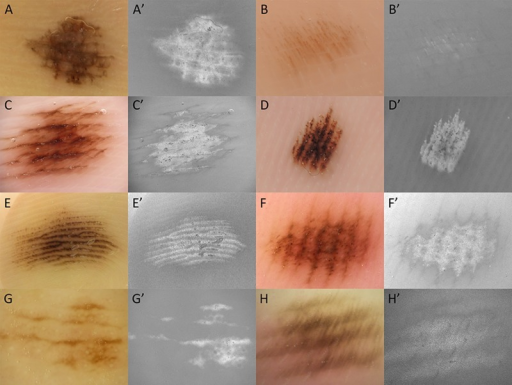 (A–H) Dermoscopic images of acral nevi. (A'–H') Saturation images of A–H. The parallel furrow patterns or fibrillar patterns in acral nevi are composed of saturated melanin pigments. (Copyright: ©2014 Sakai et al.)