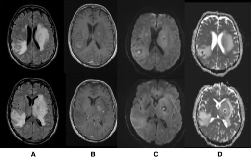 Brain magnetic resonance imaging(MRI)on day 2. Showed multiple rounded expansive lesions in basal ganglia region predominantly on the left side and in subcortical right parietal region with prominent oedema, resulting in modelling of lateral ventricles, slight deviation of middle line to the right side and reduction of sulci dimensions (A: T2 flair). These lesions present a post gadolinium multilayered ring enhancement pattern (B: T1 post gadolinium) and central core with restrition of water molecules diffusibility (C: DWI, D: ADC map).
