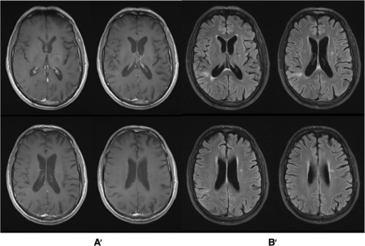 Follow-up brain magnetic resonance imaging(MRI). After antifungal treatment with fluconazole for 49 weeks, showing a complete resolution of brain abscesses with global atrophy. (A': T1 post gadolinium; B': T2 flair).