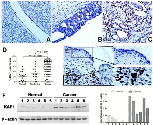 Expression of KAP1 in human non-tumor ovarian tissues and ovarian cancer. (A) in normal ovarian tissue; (B) in borderline tumor; (C) in ovarian cancer; (D) KAP1 expression levels in normal ovarian, borderline tumor and ovarian cancer tissues; (E) the expression level of KAP1 in non-tumor cells was lower than tumor cells in one sample and (F) western blot showed the expression level of KAP1 in cancer tissues was higher than normal ovarian tissues. (IHC, 400×). (**p < 0.01; ***p < 0.001).