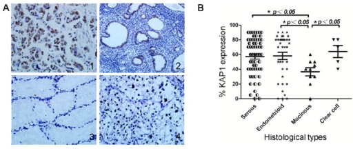 KAP1 expression levels in different histological types (A1, serous carcinomas, A2 endometrioid carcinomas, A3 mucinous carcinomas and A4 clear cell adenocarcinomas); (B) Significant differences in KAP1 expression levels between serous, endometrioid carcinoma or clear cell adenocarcinoma and mucinous carcinoma. (*p < 0.05).