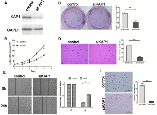 Downregulated expression of KAP1 inhibits cell growth and migration in SKOV3 cells. (A) western blot indicates KAP1 interference efficiency; (B) MTT assay at 0, 24, 48, 72 and 96 h after transfection; (C) representative images of two-dimensional culture of cells; (D) representative images of soft agar colony formation assay of cells (100×); (E) photographs representing the cells migrated into the wounded area, and histogram showing the relative migration distance of cells in the wound-healing assay (200×) and (F) transwell migration assay (100×). (*p < 0.05; **p < 0.01; ***p < 0.001).
