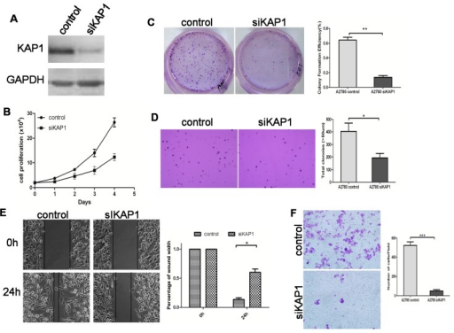 Downregulated expression of KAP1 inhibits cell growth and migration in A2780 cells. (A) western blot indicates the KAP1 interference efficiency; (B) MTT assay at 0, 24, 48, 72 and 96 h after transfection; (C) representative images of two-dimensional culture of cells; (D) representative images of soft agar colony formation assay of cells (100×); (E) photographs represent cells migrated into the wounded area, and histogram shows the relative migration distance of cells in the wound-healing assay (200×) and (F) transwell migration assay (100×). (*p < 0.05; **p < 0.01; *** p < 0.001).