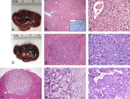 Liver tumor development in SKP2/N-RasV12 mice by hydrodynamic gene delivery(A) Macroscopic and microscopic (B,C) appearance of SKP2-injected livers showing the absence of any gross or histological alterations 40 weeks post hydrodynamic injection. Scattered hepatocytes positive for nuclear HA-tagged SKP2 immunolabeling were present in the liver parenchyma of SKP2 injected mice (B, inset). (D-I) In striking contrast, concomitant overexpression of SKP2 and N-RasV12 resulted in the development of multiple tumors (E-I) in SKP2/N-RasV12 mice. In particular, small tumors (E,F) and large tumors (G-I) were constituted of small cells that were either glycogen-poor (F, as indicated by the PAS staining) or glycogen–rich (H, left part of the picture, demarcated by a dotted line). Tumors were classified as either hepatocellular adenomas (HCA; E,G) or carcinomas (HCC; I). Original magnifications: 40X in G; 100X in B; 200X in inset, E, and I; 400X in C, F, and H.