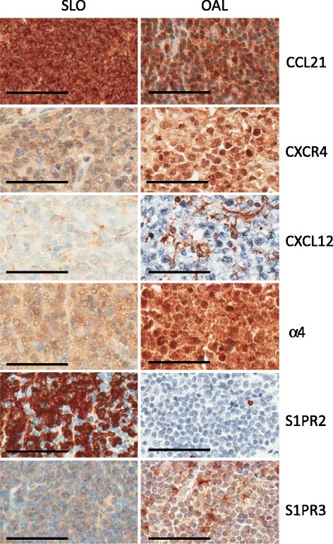 Representative cases of SLO and OAL showing different expression of molecules involved in lymphocyte homing. TMA cores for CCL21, S1PR2 and S1PR3 from MCL; CXCR4, CXCL12 and α4 are from DLBCL. (Other histological types are shown in Additional file 2: Figure S1). Bar = 60 μM.