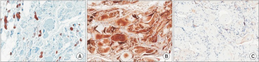(A) Immunohistochemical staining for desmin is negative. There is no accumulation except for only positive in regenerating myofibers. (B) Immunohistochemical staining for titin is positive. (C) Immunohistochemical staining for LDB3 (ZASP) is negative.