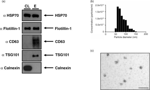 The NSCLC SK-MES-1 cell line produces exosomes that can be isolated with ultrafiltration of CCM. (a) 5 µg of protein was used for Western blot analysis of isolated exosomes. The presence of canonical exosome proteins, and the absence of Calnexin demonstrates a pure exosome preparation. (b) TRPS analysis demonstrates a size distribution of particles consistent with the size range of exosomes. (c) EM image of exosomes demonstrates cup-shape morphology, size bar=200 nm. CL: cell lysate; E: exosome lysate.