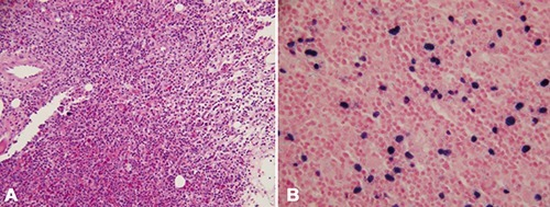 Bone marrow biopsy revealing hypercellular marrow with atypical lymphoid infiltrates (A) and left axillary lymph node biopsy with numerous lymphocytes staining positive for Epstein-Barr virus (B).