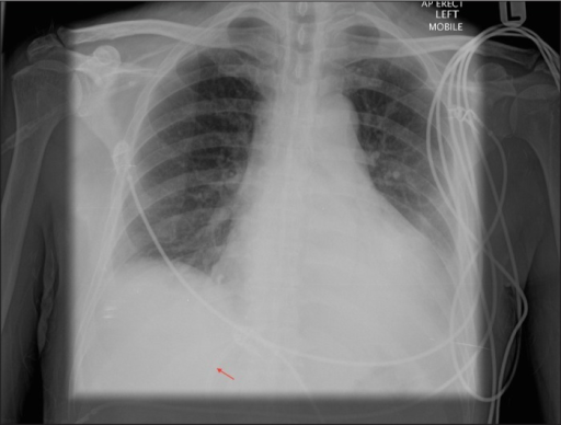 Chest radiograph 3 weeks after biliary stent insertion showing the tip of the biliary stent (arrow) overlying the cardiac silhouette.