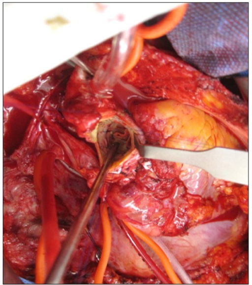 All the reconstructed aortic valve leaflets consisting of a native leaflet and a bovine pericardial patch were thickly stiffened.