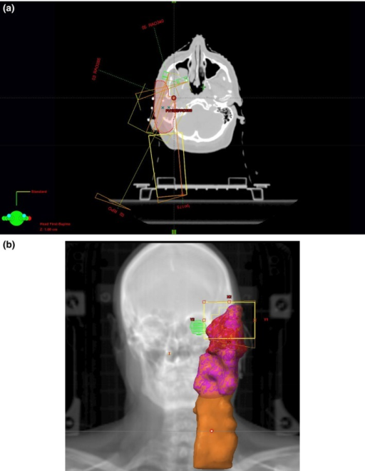 (A) OSRaT – orbital sparing contralateral post‐oblique field and (B) beams eye view.