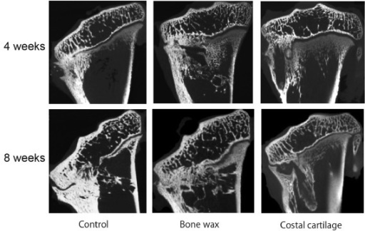 Representative microcomputed tomography (μ-CT) images of the mid-coronal proximal left tibia at four and eight weeks after operation for each group.