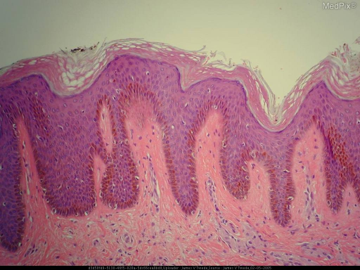 Histopath: The biopsy shows broad fascicles and nests of large, polygonal cells infiltrating the derrnis among the collagen bundles. The cells are composed of fine, granular eosinophilic cytoplasm with indistinct cytoplasmic borders and uniform appearing nuclei. Scattered residual bodies are also visible. The tumor extends to the deep surgical margin.