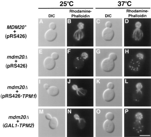 Actin cables lacking in mdm20Δ cells are partially  restored by introducing extra copies of TPM1 and TPM2.  MDM20+ cells (JSY999) carrying pRS426 (A–D) and mdm20Δ  cells (JSY1065) carrying pRS426 (E–H), pRS426-TPM1 (I–L), or  GAL1-TPM2 (M–P) were grown in SD − Ura or SGal − Ura at  25°C, and then shifted to 25° and 37°C for 3 h. Cells were stained  with rhodamine-phalloidin and visualized by DIC or fluorescence  microscopy as indicated. Representative cells are shown. Bar, 5 μm.