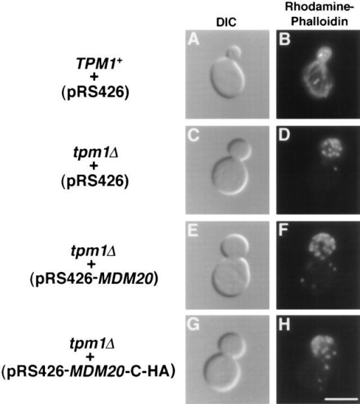 Actin cables lacking in tpm1Δ cells are not restored by  overexpression of Mdm20p. TPM1+ cells (FY22) containing  pRS426 (A and B) and tpm1Δ cells (JSY707) containing pRS426  (C and D), pRS426-MDM20 (E and F), or pRS426-MDM20-CHA (G and H) were grown at 25°C, stained with rhodamine-phalloidin, and visualized by DIC or fluorescence microscopy as indicated. Representative cells are shown. Bar, 5 μm.