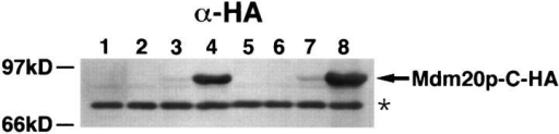 Expression of Mdm20p-C-HA in wild-type and tpm1Δ  cells. Extracts were prepared from wild-type cells (JSY999) containing pRS416 (lane 1), pRS426 (lane 2), pRS416-MDM20-CHA (lane 3), and pRS426-MDM20-C-HA (lane 4), or tpm1Δ cells  (JSY707) containing pRS416 (lane 5), pRS426 (lane 6), pRS416- MDM20-C-HA (lane 7), and pRS426-MDM20-C-HA (lane 8).  The cells were harvested after growth to mid log phase at 25°C,  and equal amounts (equivalent OD units) of the cell extracts  were subjected to SDS-PAGE and transferred to nitrocellulose.  The nitrocellulose was probed with antibodies to the HA epitope.  The arrowhead identifies the Mdm20-C-HA protein, and the asterisk identifies a background band that was used to normalize  the amount of protein present in each lane.