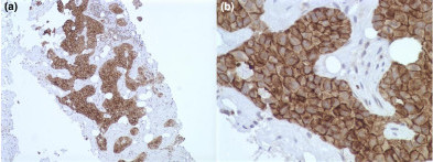 Immunohistochemisty of EGFR and pEGFR in invasive breast carcinoma. Intense membrane staining of (a) EGFR (ABC/HRPX200) and of (b) pEGFR (ABC/HRPX400) in two cases of invasive ductal breast carcinoma. EGFR, epidermal growth factor receptor; pEGFR, phosphorylated epidermal growth factor receptor.