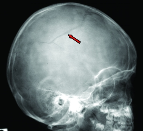simple skull fracture