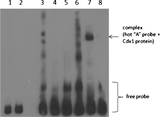 Electrophoretic mobility shift and competition assays with nuclear extract of HEK293 cells transfected with pCMV-CDX1 and allelic variants of SNP rs9547970 in POSTN. 1 Labeled G probe + nuclear extract(Cdx1−); 2 labeled A probe + nuclear extract (Cdx1−); 3 labeled G probe; 4 labeled G probe + nuclear extract (Cdx1+); 5 labeled G probe + nuclear extract (Cdx1+) + unlabeled G probe; 6 labeled A probe; 7 labeled A probe + nuclear extract (Cdx1+); 8 labeled A probe + nuclear extract (Cdx1+) + unlabeled A probe. Cdx1−, from untreated HEK293; Cdx1+, from HEK293 transfected with pCMV-CDX1