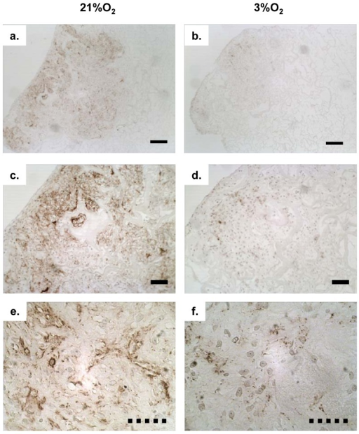 Immunohistochemistry (IHC) of extracellular matrix deposition of collagen type II: Collagen type II as indicated by brown staining was detected in Duragen®-meniscus fibrochondrocytes constructs cultured for 21 days under normoxic (21%O2) and hypoxic (3%O2) conditions using paraffin-wax embedded sections (5 µm thickness). a) Low (4×); c) medium (10×); e) high (40×) magnification of IHC photomicrographs of collagen II stained sections of constructs containing normoxia expanded MFCs followed by culture under normoxia. b) Low (4×); d) medium (10×); f) high (40×) magnification of IHC photomicrographs of collagen II stained sections of constructs containing hypoxia expanded MFCs followed by culture under hypoxic conditions.