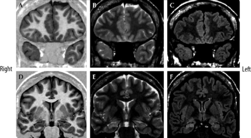 "Focal cortical dysplasia type Ia with ipsilateral hippocampal sclerosis (""dual pathology"") in a 31-year-old female by Blumcke IIIa. Coronal MR images: turbo spin-echo inversion-recovery T1-weighted (A,D), turbo spin-echo T2-weighted (B,E), turbo spin-echo FLAIR T2-weighted (C,F) obtained respectively at the level of the temporal pole and the head of the hippocampus. Hypoplasia of the right temporal pole is recognizable, with volume loss of the white matter which leads to mild hyperintensity on T2-weighted images. Mild blurring of the cortical-white matter junction is visible on both T1- and T2-weighted images (A–C). The right hippocampus is atrophic, with decreased signal on IR-T1W images and increased signal on T2W images, consistent with hippocampal sclerosis. Courtesy of dr Norico Salamon. Epileptic Disorders, 2009; 11, 194–205."