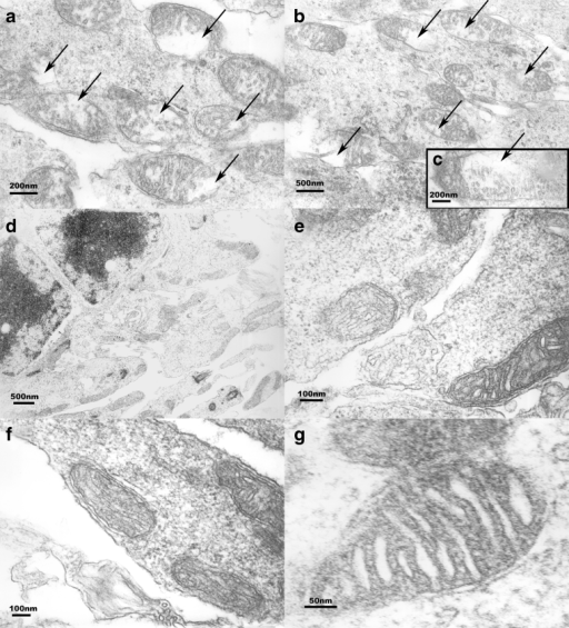 EM studies (group I-b). a–c Mitochondria in I/R-injured inner retinal cells from rats not treated with α-MSH. These images demonstrate disintegration of the mitochondria due to formation of interior vacuoles (arrows). Mitochondria in I/R-injured inner retinal cells from animals treated with 500 μg/kg α-MSH are shown in (d–g). No vacuolization is seen here