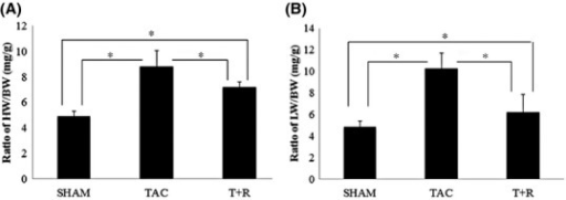Resveratrol treatment attenuates TAC-induced cardiac hypertrophy and lung edema. Mice were subjected to sham surgery, TAC, or TAC + resveratrol treatment. (A) Ratio of heart weight to body weight: (HW/BW). (B) Ratio of lung weight to body weight (LW/BW). Values are expressed as the mean ± SD. *P < 0.05 was considered statistically significant.