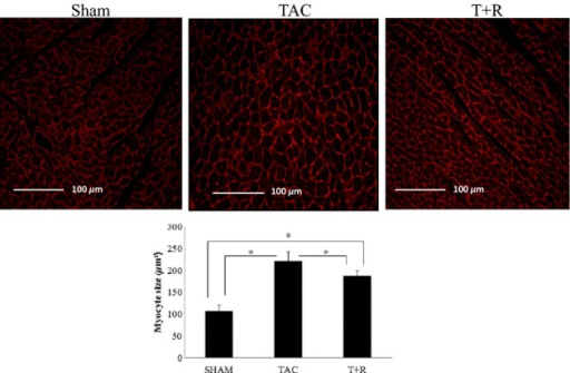 Resveratrol attenuates TAC-induced cardiomyocyte hypertrophy. Tissue slices (LV, day 28) from sham surgery, TAC, and TAC + resveratrol-treated mice were stained with WGA (top panels) and quantified (bottom panel) as described in the Materials and Methods section. Values are expressed as the mean ± SD. *P < 0.05 was considered statistically significant.