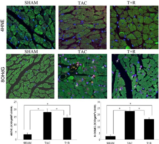 Resveratrol attenuates TAC-induced oxidative stress. Representative images of 4-HNE (top panels) and 8OHdG (middle panels) staining of LV sections at day 28 from sham surgery, TAC, and TAC + resveratrol-treated mice. Areas shown in red are positive for 4-HNE and 8OHdG. Cardiomyocytes were stained green using antitropomyosin I and nuclei in blue were labeled with DAPI. Quantification of the data as described in the Materials and Methods section is shown in the bottom panels. Values are expressed as the mean ± SD. *P < 0.05 was considered statistically significant.