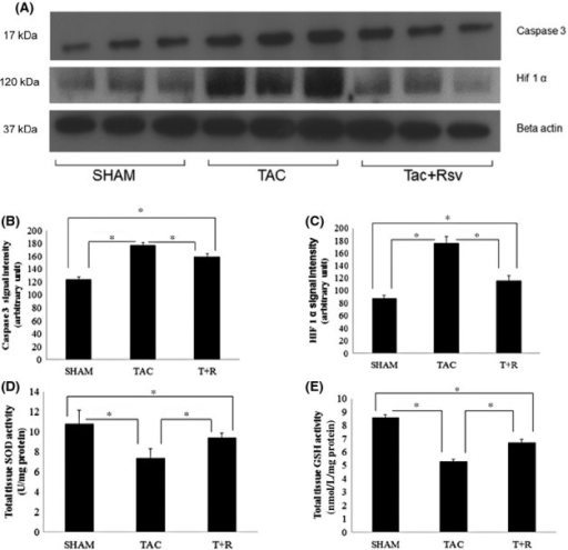 Resveratrol treatment alters pathways that regulate apoptosis, hypoxia, and oxidative stress. (A) Representative composite Western blots of cleaved caspase 3, and HIF1α from LV protein extracts of sham surgery, TAC, and TAC + resveratrol treatment (28 day). (B) Quantification of cleaved caspase 3. (C) HIF1α protein levels. (D) SOD activity. (E) Glutathione content. All values were normalized to β-actin levels. Values are represented as mean ± SD. *P < 0.05 was considered statistically significant.