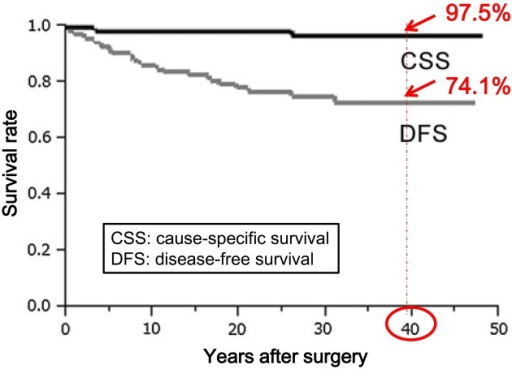 Long-term prognosis of pediatric thyroid cancer (papillary carcinoma) in Japan.