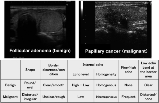 Distinction between benign and malignant thyroid tumors in B modeultrasonography.