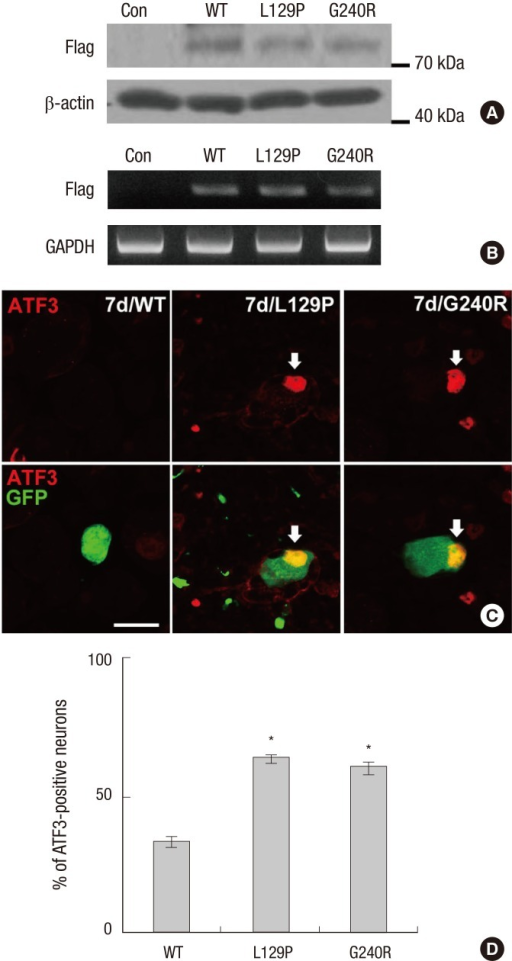 GARS mutant-induced ATF3 expression in dorsal root ganglion (DRG) neurons. (A) Protein lysates from mouse DRG neurons following infection with adenoviruses were analyzed by Western blotting (WT, wild-type; L129P, L129P mutant hGARS; G240R, G240R mutant hGARS). (B) mRNA expression of FLAG-tag in DRG following infection with adenoviruses by RT-PCR. (C) In GARS mutant-expressed DRG neurons, GARS mutants (L129P and G240R) induced ATF3 expression (red). In contrast, in GARS WT-expressing DRG neurons, identical adenovirus vector expression failed to induce ATF3. Scale bar = 20 µm. (D) Quantification of ATF3 levels in DRG neurons. ATF3 levels were normalized to GFP levels. *P < 0.001 compared to the WT, n = 4.