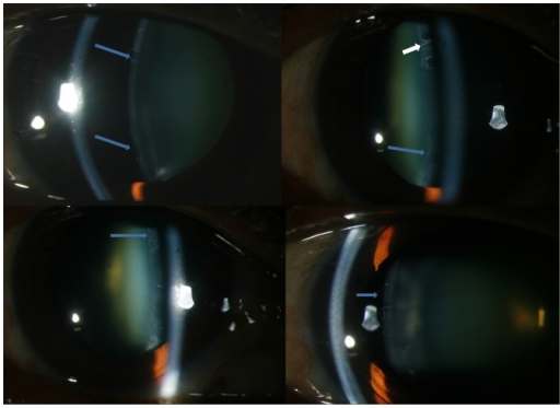 Slit lamp photograph showing atypical features of classical pseudoexfoliation like circularly shaped empty spaces (Top left &right, bottom left and right) which are seen extending from the periphery to the centre interspersed with pigment deposits (white arrow in top right).
