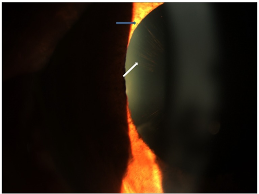 Slit lamp photograph showing radial pigmentary pattern of deposits on the anterior lens surface (white arrow) with adjacent pupillary ruff atrophy (blue arrow).