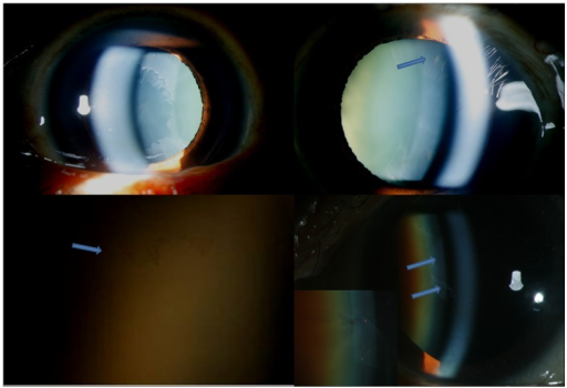 Slit lamp photograph showing right eye (Top left) classical peripheral pseudoexfolative ring and left eye (Top right) showing radial pigments pattern of deposits.Bottom left shows slit lamp photograph in high magnification showing coalescence of peripheral radial pigments resembling early classical peripheral ring (arrow). Bottom right shows slit lamp photograph showing central classical pseudoexfoliation ring with anterior curling of the sheet (Blue arrows) with inset showing interspersed radial pigment deposits.