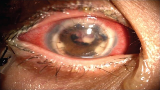 Right eye of the patient 1 week after therapeutic penetrating keratoplasty and antifungal therapy.