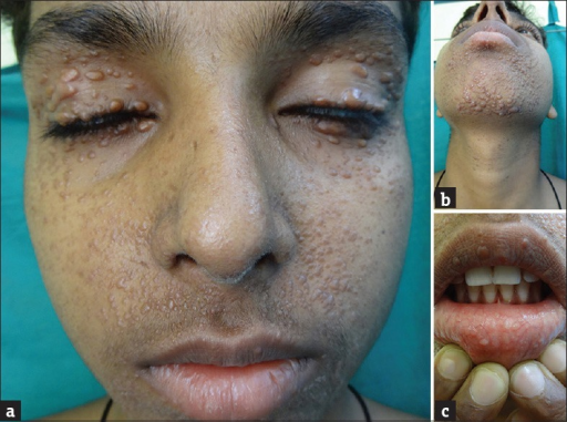 Multiple discrete and confluent brown-colored papules, nodules and plaques over the face and whitish papules on oral mucosa (a-c)