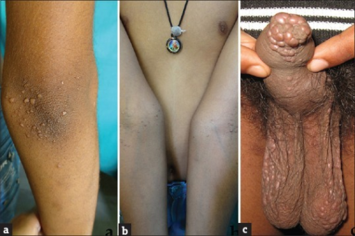 Multiple discrete and confluent papulo-nodules and plaques on the upper extremity and external genitalia (a-c)
