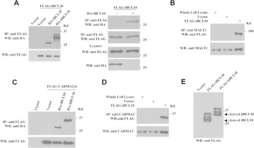 tBCL10 dimerizes and binds to CBM proteins. (A) HEK293 cells were transiently cotransfected with FLAG-tagged or HA-tagged versions of tBCL10 and hBCL10. 24 h later, cell lysates were immunoprecipitated with anti-FLAG mAb. Immunocomplexes were separated by SDS–PAGE and transferred onto membranes subsequently probed with anti-HA antisera. The right panel shows controls for immunoprecipitation specificity. (B) Lysates from HEK293 cells transfected with tBCL10 were analyzed for coprecipitating MALT1; (C) CARMA2sh and (D) CARMA3. (E) Over-exposure of immunoblot experiments described in (A) shows proteolytic processing of tBCL10.