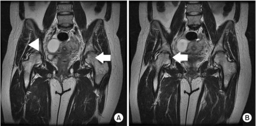 Magnetic resonance images at four months after delivery. Coronal T2-weighted image demonstrates slightly decreased marrow signal in the left hip (arrow) and a decrease in joint effusion and adjacent soft tissue edema of the right hip (arrow head) (A) but a slight aggravation of the depressed lesion on the anterosuperior aspect of the right femoral head (arrow) (B).